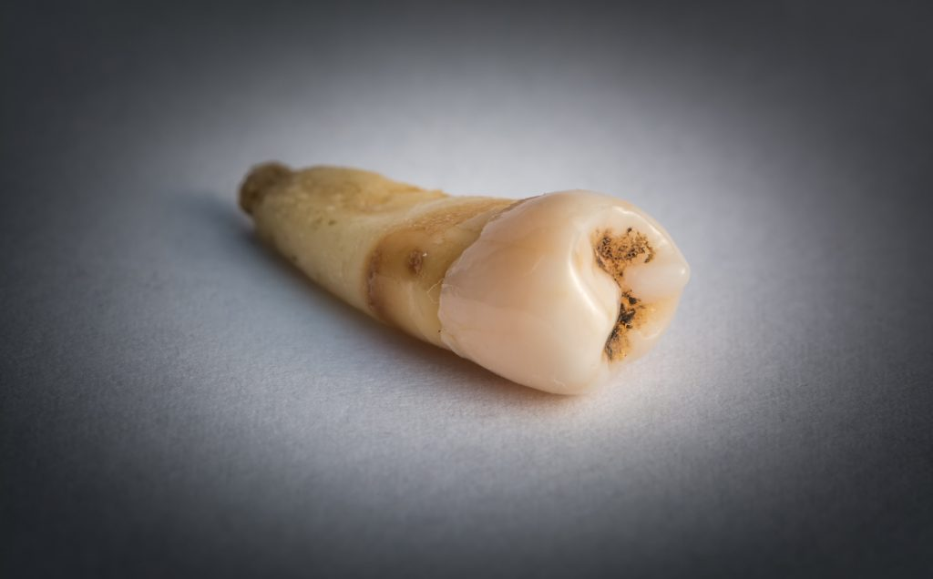 Picture of a rotten tooth on a counter.